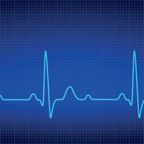 Certified Cardiographic Technician (CCT) Exam - McRee Learning Center